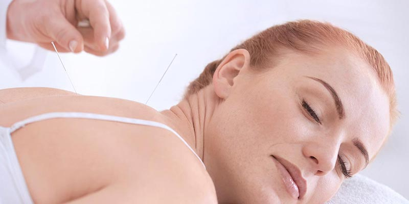 Acupuncture-Chatswood