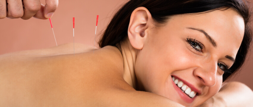 Acupuncture Benefits And Why You Should Give It A Try